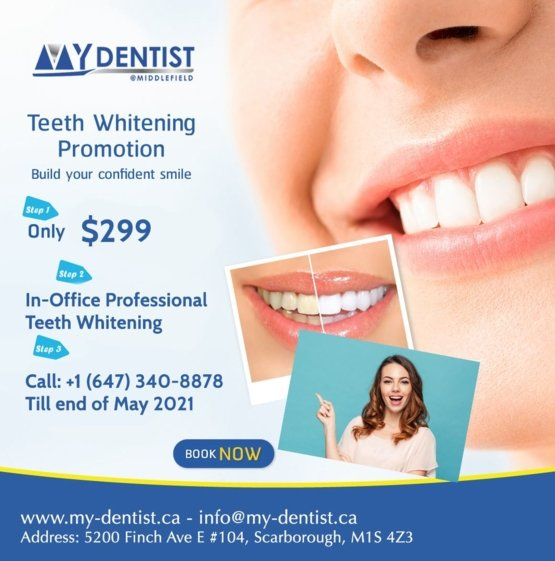 teeth whitening promotions