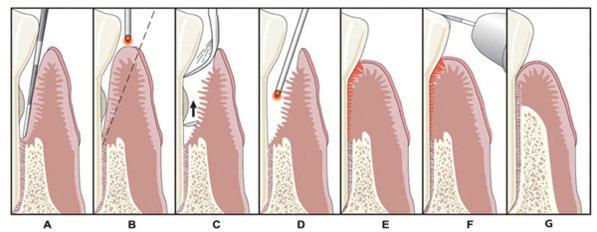 Dr. Mark I. Gutt LANAP Laser Treatment