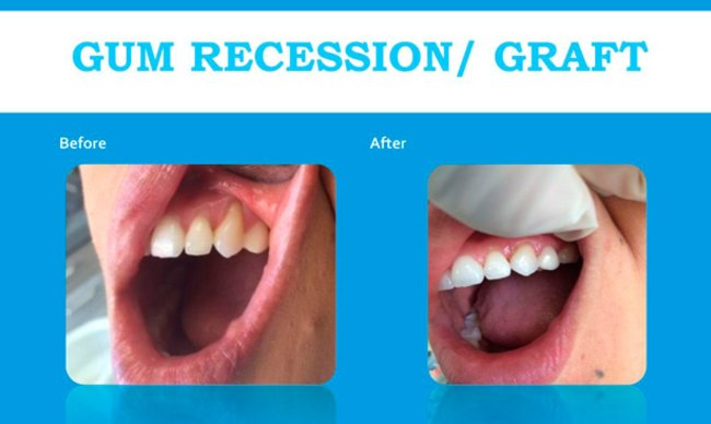 before and after gum recession